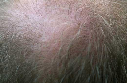 bald-patch